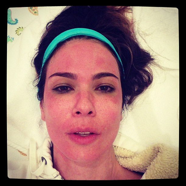 Luciana Gimenez fica com o rosto marcado após tratamento de beleza