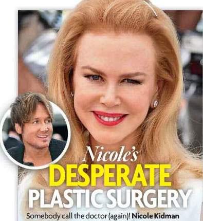 Nicole Kidman aparece em evento com rosto quase deformado