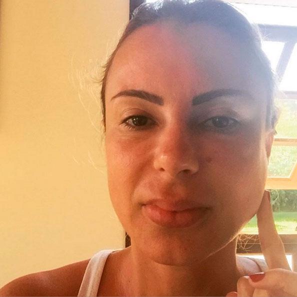 Marilene Saade diz estar doente, e impressiona com inchaço