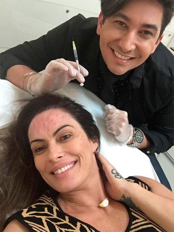 Núbia Oliiver reaplica botox: 'Todos sabem que não vivo sem'