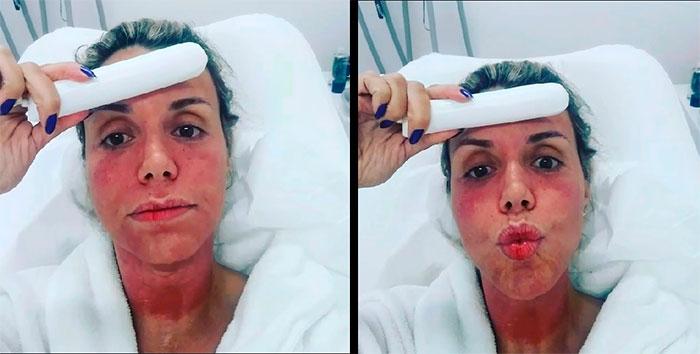 Renata Banhara faz tratamento e fica com a pele vermelha