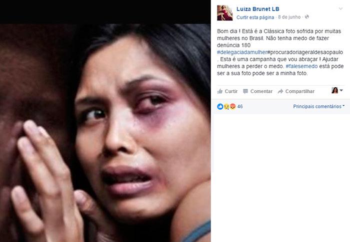 Luiza Brunet denuncia ex-namorado por agressão.