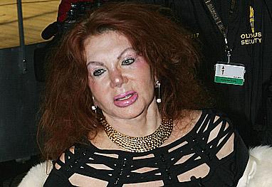 Mãe de Stallone admite ter abusado muito das plásticas - Getty Images