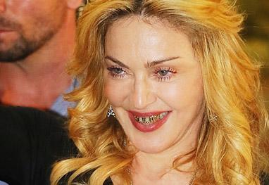 Madonna exibe prótese de ouro e diamantes nos dentes - Getty Images