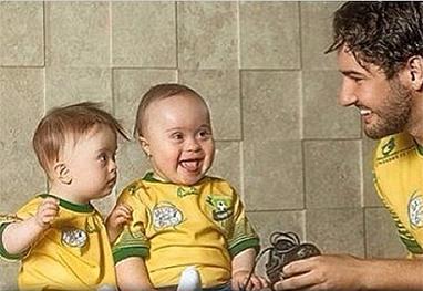 Alexandre Pato parabeniza portadores de Síndrome de Down, no Instagram - Reprodução/Instagram