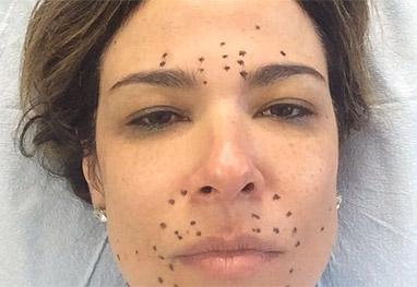 Luciana Gimenez faz tratamento usando o próprio sangue - Reprodução/Instagram