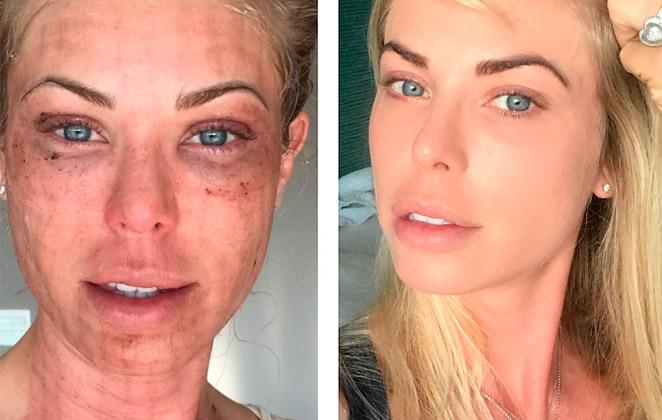 Carol Bittencourt choca seguidores com hematomas no rosto