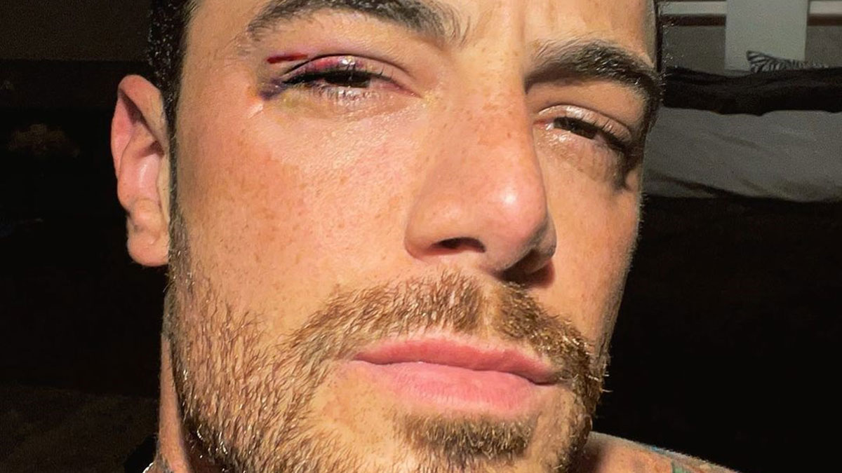 Felipe Titto mostra hematomas após bater rosto na janela do carro