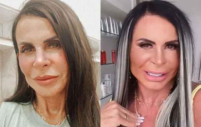 Gretchen mostra resultado da harmonização facial