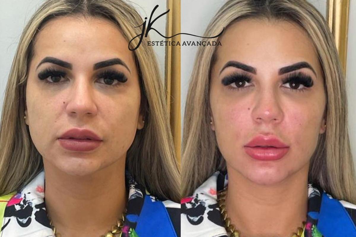 Deolane Bezerra antes e depois de harmonização facial