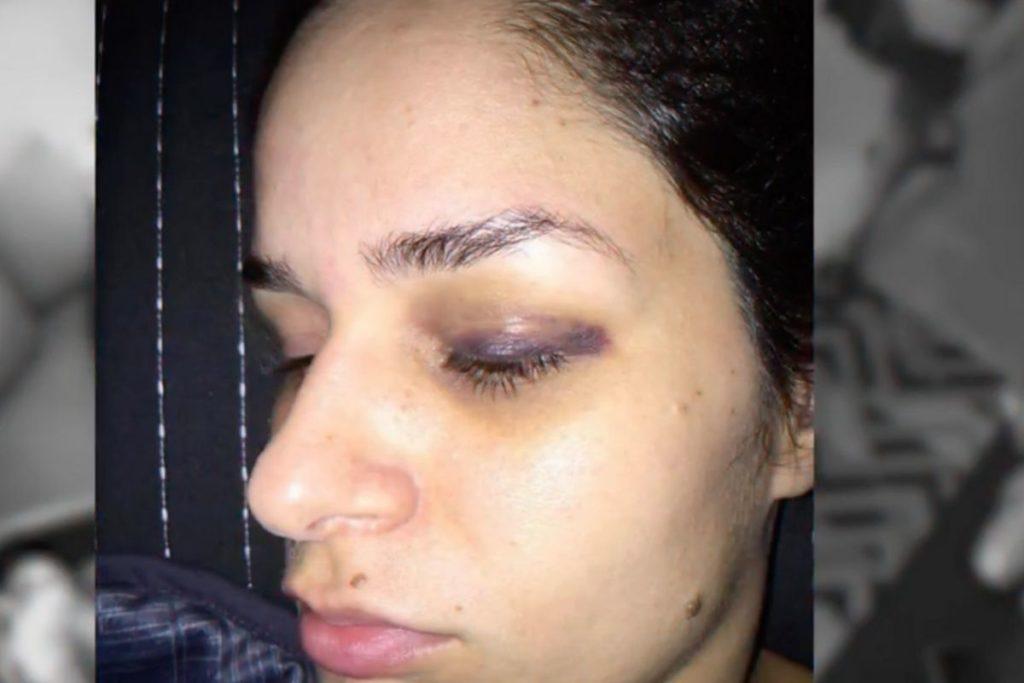 Pamella Holanda com  o olho roxo após agressão