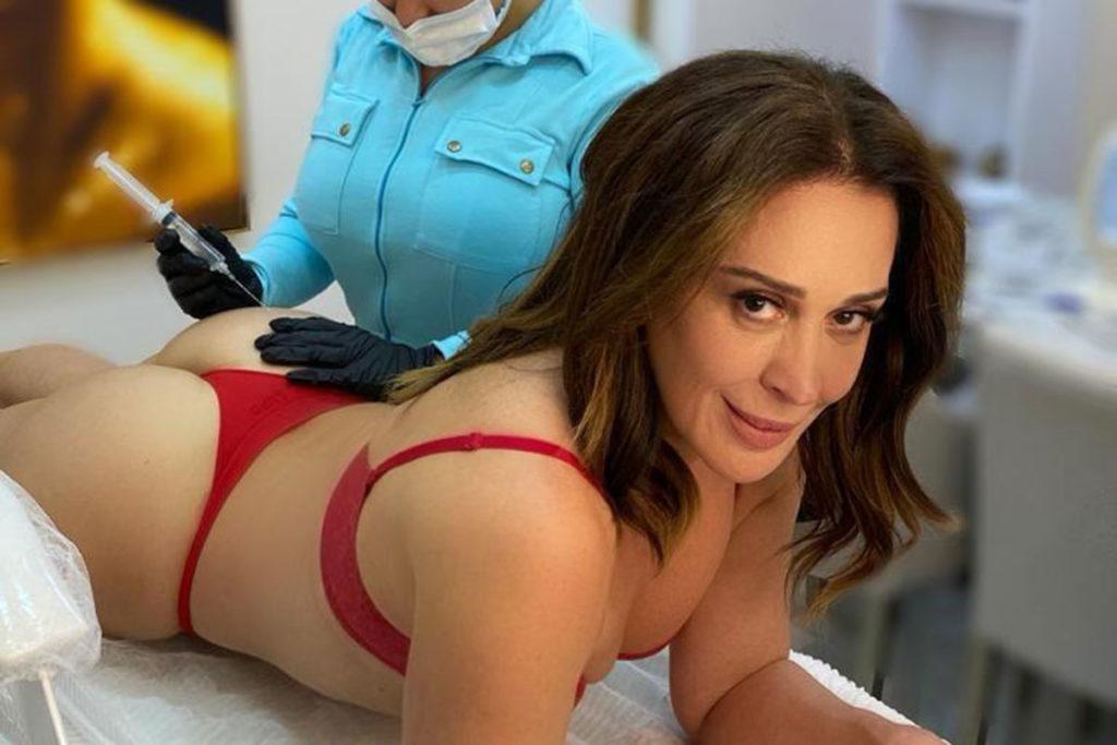 Claudia Raia passou por procedimento estético no bumbum