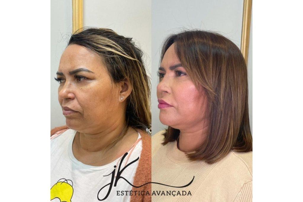 Fotomontagem com antes e depois de Lucilene