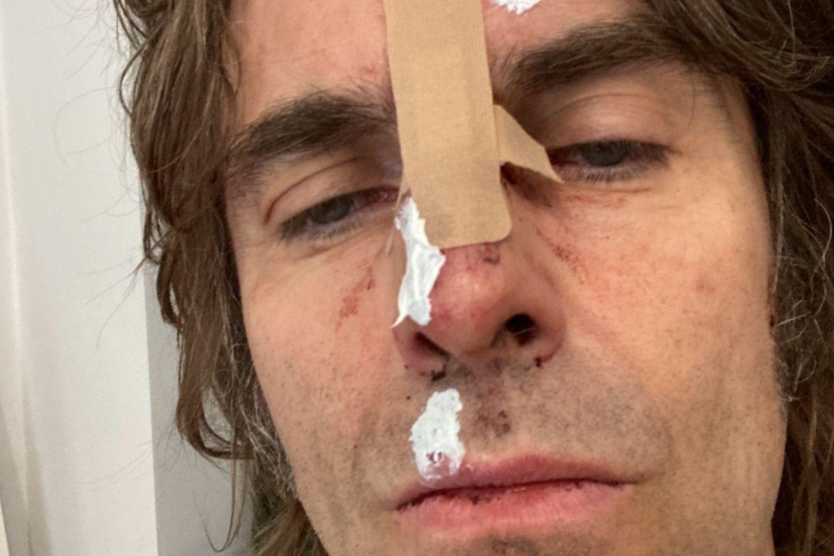 Liam Gallagher machucado