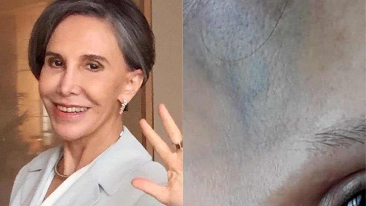 Florinda Meza, do seriado 'Chaves', sofre queda e exibe hematoma